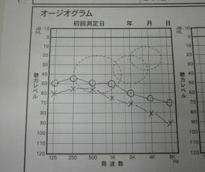 東京都 江戸川区 瑞江 補聴器 メガネ 評判 口コミ