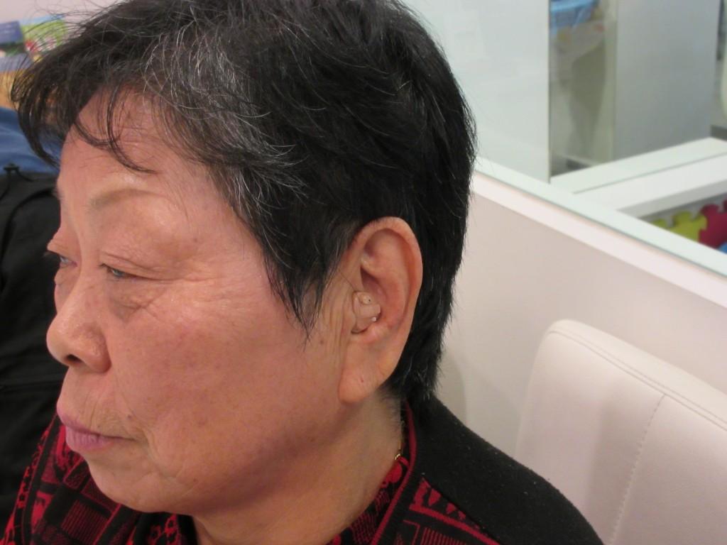 江戸川区 補聴器 リオネット 耳穴式補聴器