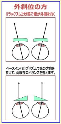 武蔵野市 武蔵境 メガネ 眼鏡 認定眼鏡士 両眼視 プリズム
